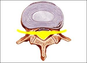 Sintomi di malattia di osteochondrosis